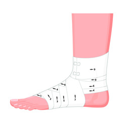 Vector illustration. Correct way to wrap human ankle by flexible elastic supportive orthopedic bandage (sprain, strain). Lateral view.  For advertising, medical publications.