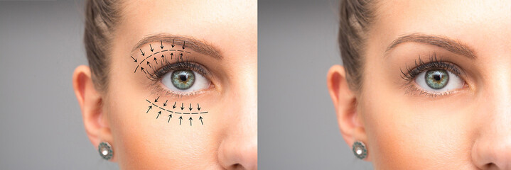 Female eyes before and after blepharoplasty