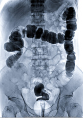 barium enema image or x-ray image of large intestine  showing anatomical of colon or large intestine. medical concept.