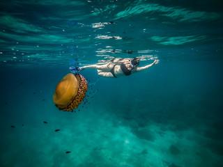 jellyfish and beautiful girl