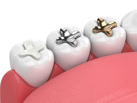 3d render of teeth with inlay