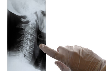 A doctor in white gloves points a finger at an x-ray of the cervical spine. Close-up. Concept on a medical theme, day of radiologist. Isolate. Copy space.