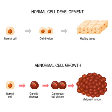 Cancer cell. illustration showing cancer disease development.