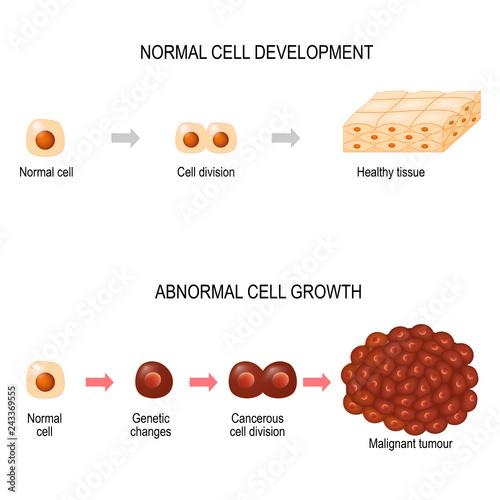Cancer cell  illustration showing cancer disease development