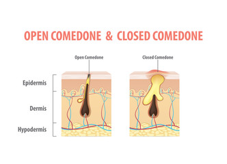 Skin acne comparing with Open Comedone & Closed Comedone condition diagram illustration vector on white background. Beauty concept.