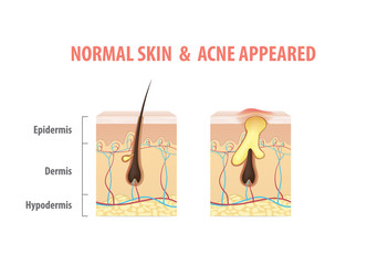 Skin comparing with Normal Skin & Acne Appeared condition diagram illustration vector on white background. Beauty concept.