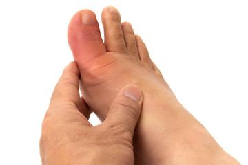 痛風の足指