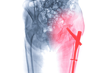 x-ray left hip replacement ,hip painful skeleton x-ray isolated on white background.