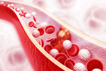 Cholesterol plaque in artery on science background