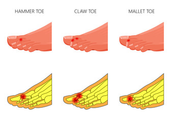 Illustration of the deformation of toes Wall mural