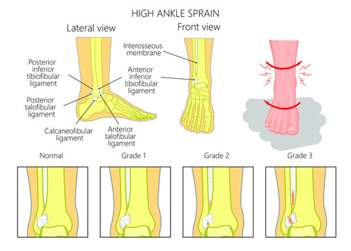 Illustration of Mechanism of formation of a High ankle sprain  (Syndesmotic Sprain) and Grades of high ankle sprain with external and skeletal (lateral and front) view of an ankle.