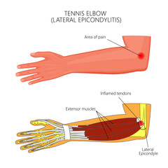 Illustration of Lateral Epicondylitis or tennis elbow.