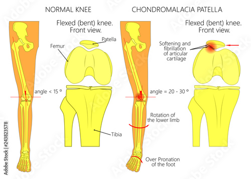 illustration (diagram) of normal leg with a healthy knee and a leg with  over pronation of the foot arch and chondromalacia patella