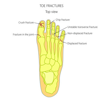 Illustration (diagram) of toe fracture types.