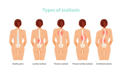 Types of scoliosis vector