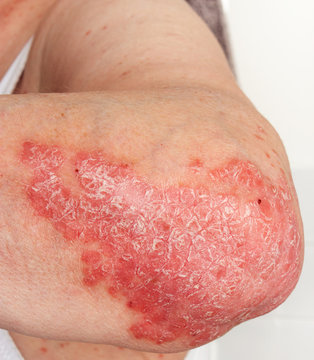 Detail of psoriatic skin disease on elbow Psoriasis Vulgaris with narrow focus, skin patches typically red itchy and scaly