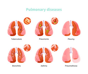 Pulmonary disease vector