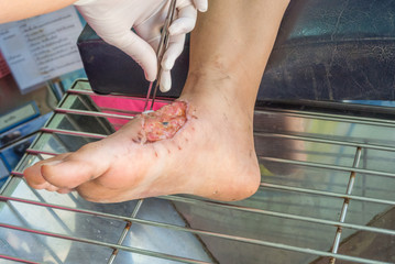 foot infected wound