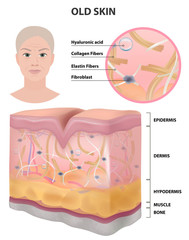 The skin of an old woman, wrinkles, detailed illustration, medicine, vector