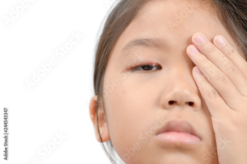 8b254088705b Close up of asian little girl one eye infection isolated