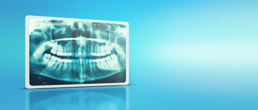 Woman x-ray of the teeth wisdom teeth horizontal pozition problem dentistry medicine. Panoramic image of teeth