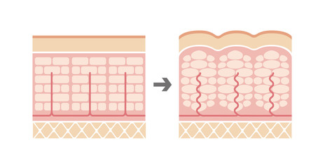 Comparative illustration of normal skin and cellulite's skin (No text)