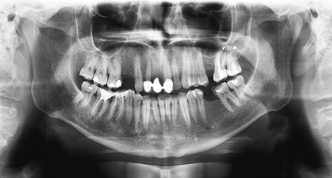Panoramic radiograph is a panoramic scanning dental X-ray of the upper and lower jaw. This is a focal plane tomography shows the maxilla and mandible of a forty year old man.