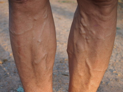 Varicose veins on the leg man using for health care concept.