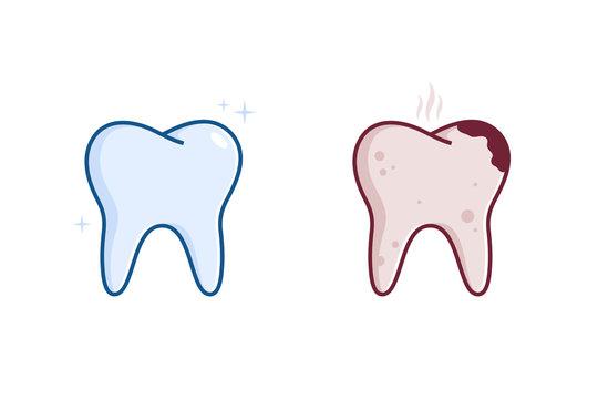 Illustration of Healthy teeth and diseased teeth