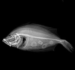 Radiografía en blanco y negro de un pez visto lateralmente con basura dentro.
