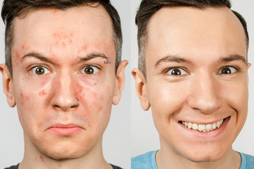 two guys before-after: left guy with acne, red spots, problem skin, right guy with healthy skin. Acne treatment concept