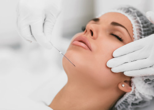 Aesthetic face surgery,cosmetic technique, mesothreads lifting and contouring face