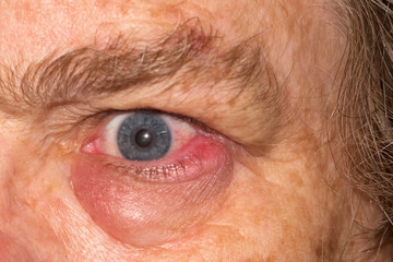 Swollen eye infection on mature woman Wall mural