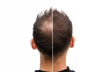 Vorher Nachher - Halbglatze eines Mannes mit Haarausfall  Wall mural