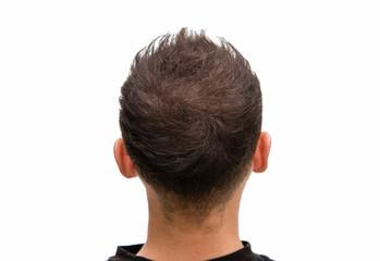 Volles Haar ohne Kahlkopf bei vorheriger Glatze