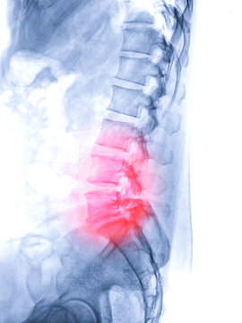 X-ray image of lambosacral spine or L-S spine lateral view from patient  lower back pain sign .