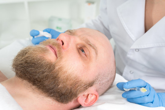 The doctor cosmetologist makes the Rejuvenating facial injections procedure for tightening and smoothing wrinkles on the face skin of a men in a beauty salon.Cosmetology skin care.