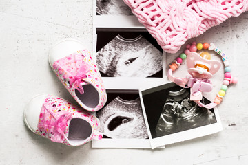 Pink booties next to pictures of the baby with ultrasound at 4 and 20 weeks of pregnancy. The concept of expecting a baby girl, pregnancy. Daughter. Selective focus.