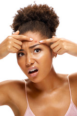 Young girl in shock of her acne. Photo of african american girl with problem skin on white background. Skin care concept