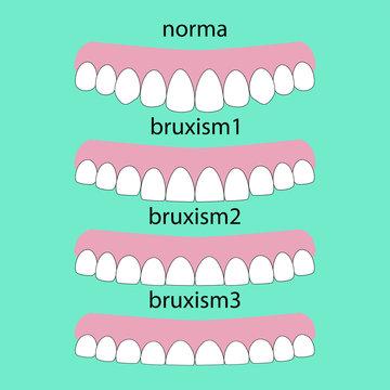 Types of teeth erasability. Layout attrition Bruxism teeth illustration vector. Erased teeth. Dental concept.
