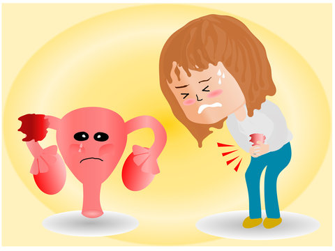 cartoon picture, Uterus, ovaries and abnormalities in cells, Close to each other, a woman standing  closed to her stomach because of abdominal pain.