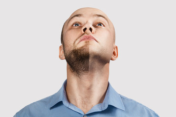 chin Man before and after hair loss treatment on white background
