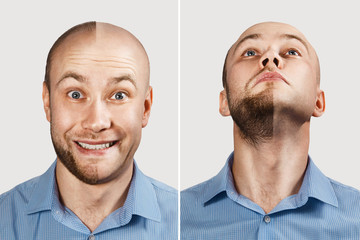 two smiling Man before and after hair loss, transplan on background. concept of baldness: the first man photo in front, the second - behind