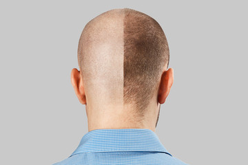 Man before and after hair loss, transplant on background. back view