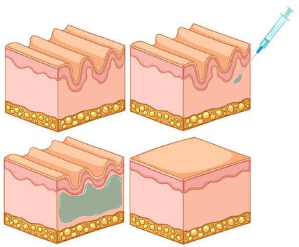 Botox filler skin injection