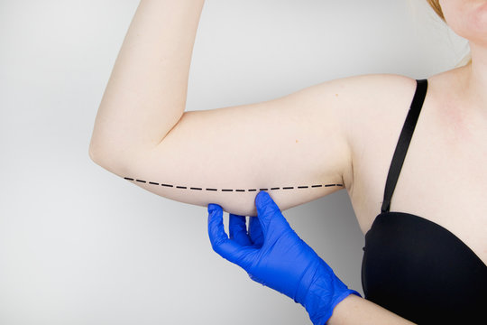 A plastic surgeon is preparing to tighten the skin of the hands. Brachioplasty - plastic arms, hanging skin hanging on his hands