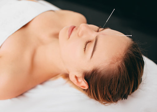 beautiful woman with acupuncture needles on her head. Chinese treatment using needles to restore an energy flow through specific points on the skin.