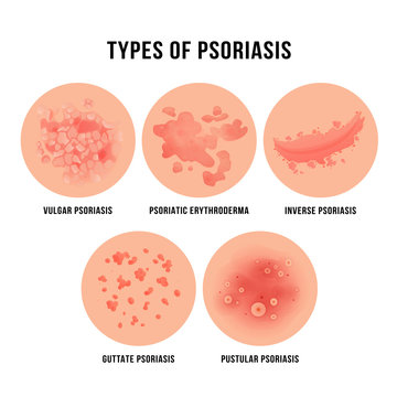 Psoriasis skin disease, types of derma problem