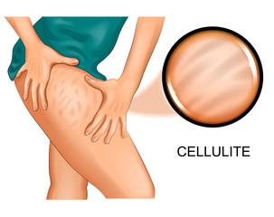 cellulite on a woman's thigh