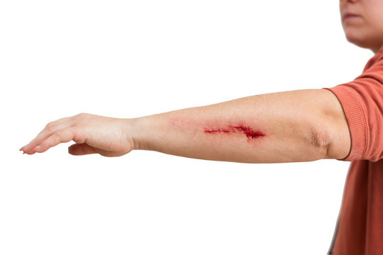 abrasion on a womans arm